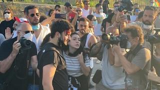 Salvini a Mondragone, cariche della polizia: ferito un manifestante