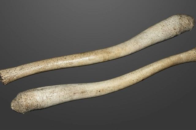 Il baculum detto anche osso penico