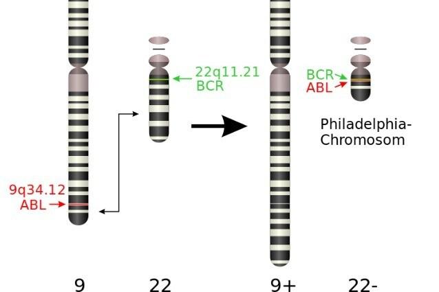 Schema di formazione del cromosoma Philadelphia