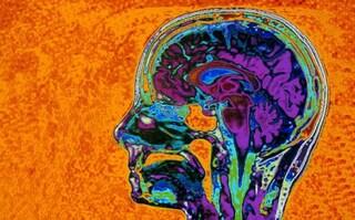Patologie psichiatriche gravi presto curabili con una terapia laser