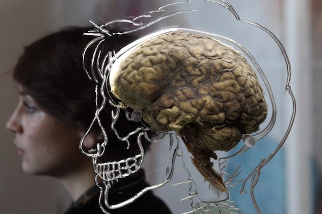 Creato il primo cervello in laboratorio