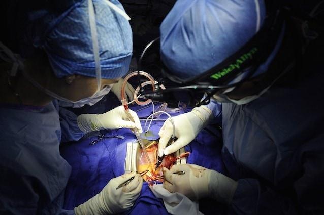 Trapianto di mini cuore bionico