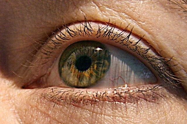 Un'alga per contrastare la cecità