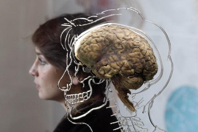infezione cerebrale amebica