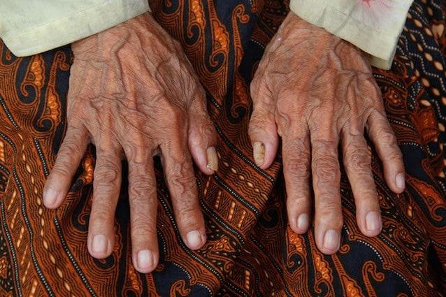 Le reti genetiche e l'invecchiamento