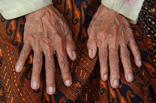 Scoperti i tre parametri che regolano il nostro invecchiamento
