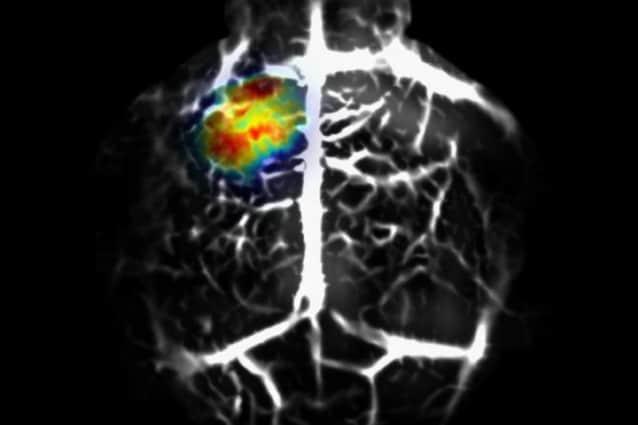 Cervello murino con cellule tumorali in evidenza grazie alla tecnica dei ricercatori (Junjie Yao and Lihong Wang)
