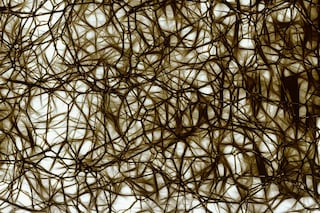 Scoperta l'alterazione genetica che provoca la schizofrenia