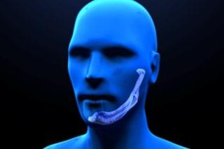 A Padova il primo trapianto italiano di mandibola artificiale