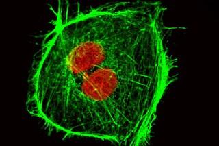 I ricercatori italiani hanno scoperto come impedire le metastasi