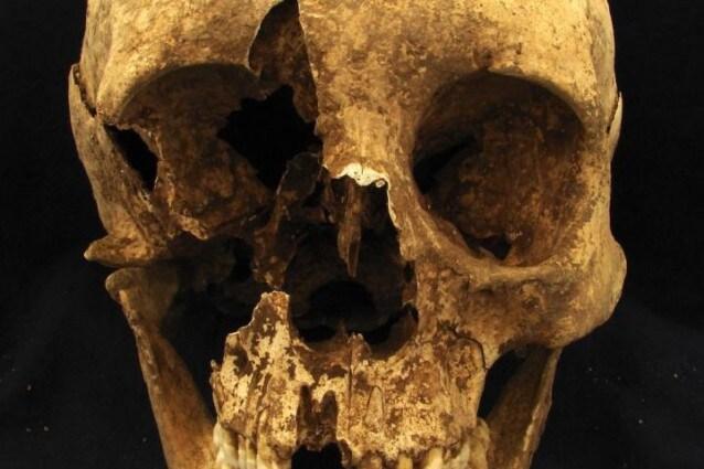 Lo scheletro di un uomo sepolto presso il cimitero di Casal Bertone, morto tra i 35 e i 50 anni a Roma ma proveniente dalle regioni alpine (Credit: Kristina Killgrove)