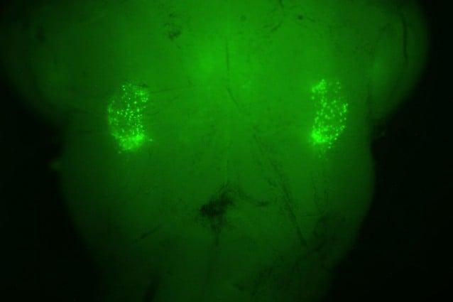 I marcatori verde fluorescenti indicano le due aree, circa 200 neuroni, che controllano il riflesso del sospiro (Stanford/Krasnow lab)