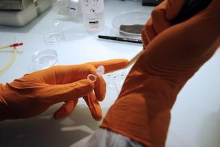 Le cellule staminali che riparano le ossa della testa e della faccia