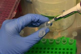 Studio italiano: terapia genica efficace contro la malattia di Krabbe