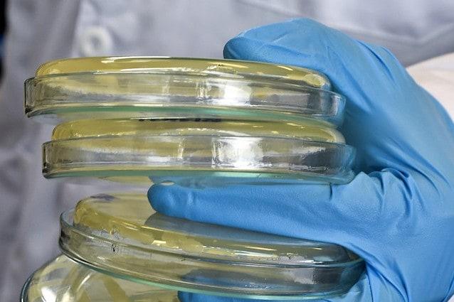 Ecco il super batterio che assorbe la CO2 per produrre energia