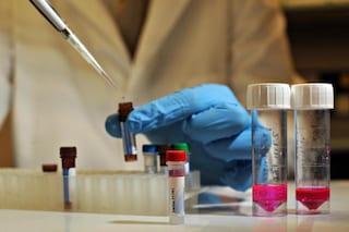Sconfitto per la prima volta il virus dell'HIV dal DNA (dei topi)