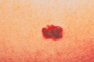 Tumori: italiani scoprono come fermare il melanoma