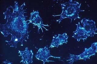 Cancro, il 'mantello dell'invisibilità' dei tumori è stato neutralizzato: nuove speranze