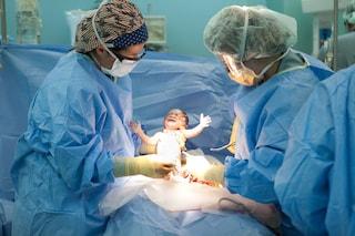 Testa più grande e bacino stretto: i sorprendenti effetti del parto cesareo sull'uomo