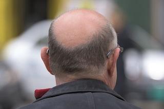 I capelli hanno l'olfatto e crescono di più quando sentono 'odore' di sandalo