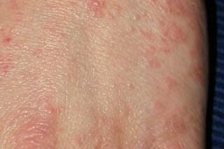 Scabbia, cos'è la malattia che provoca prurito intenso e colpisce milioni di persone