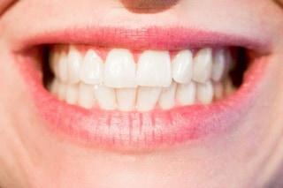 Il numero di denti perduti può influenzare l'aspettativa di vita: ecco perché