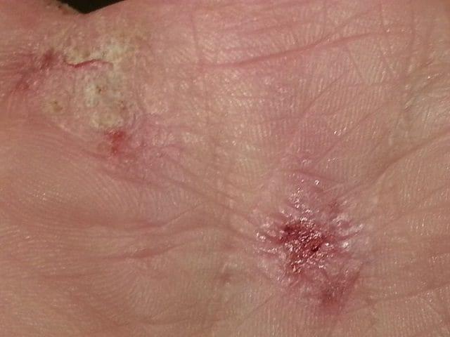dermatiote atopica