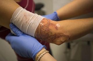 In arrivo le bende 'intelligenti': comunicano al medico lo stato della ferita via internet