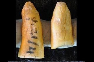 È italiana e ha 13mila anni l'otturazione più antica e (forse) più dolorosa di sempre