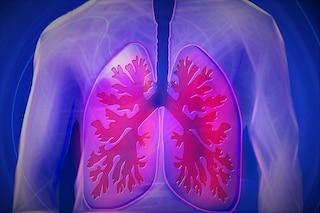Tumore al polmone, scoperto il meccanismo per bloccarne la crescita
