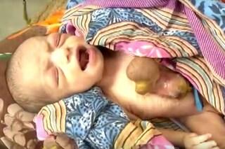 Hemlata, la bambina con il cuore che batte fuori dal petto: cos'è l'Ectopia Cordis