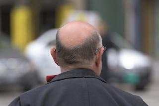 Paura delle persone calve: cos'è la peladofobia, sintomi e cura