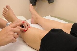 L'agopuntura funziona contro il dolore: la scienza spiega come e perché