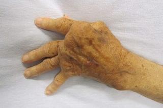 Artrite reumatoide, svolta storica: italiani scoprono 'interruttore' che blocca la malattia