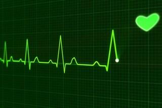 Arresto cardiaco, l'elettrocardiogramma può prevedere il rischio: ecco il 'nuovo' test