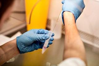 Infertilità, spermatozoi dalle cellule dell'orecchio: come funziona la tecnica