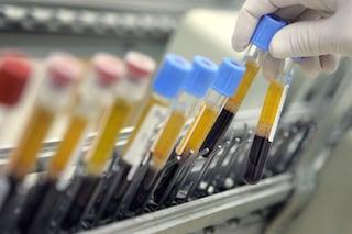 Il colesterolo 'buono' in realtà è 'cattivo': se è troppo può uccidere, ecco perché