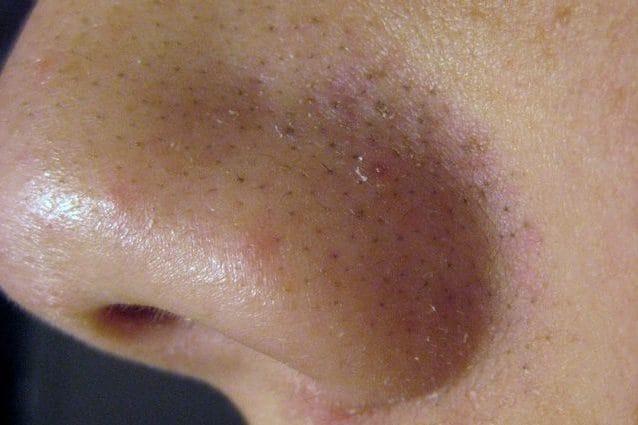 come rimuovere velocemente il grasso della faccia