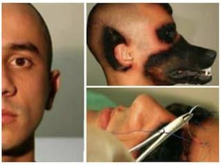 Uomo-lupo grazie alla chirurgia estetica? Foto vere, ma la spiegazione è diversa