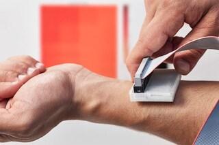 Cancro della pelle: diagnosi rapida con una semplice scansione. Come funziona sKan