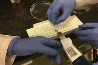 Pillole di 'feci' per curare gravi infezioni invece della colonscopia: le prenderesti?