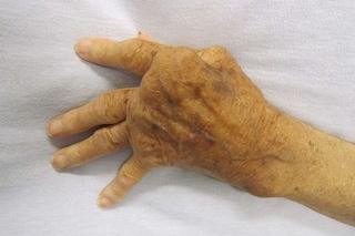 Artrite reumatoide, in Italia il farmaco che riduce dolore e rigidità. Cura i casi gravi