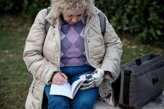 Almerina è la prima donna italiana con una mano bionica che può 'sentire' gli oggetti