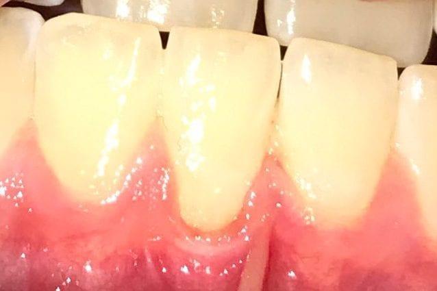 denti di chirurgia di perdita di pesona