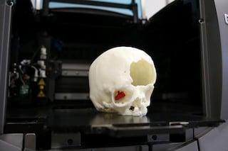 Rimosso tumore cranico a sedicenne grazie alla stampa 3D: intervento rivoluzionario a Firenze