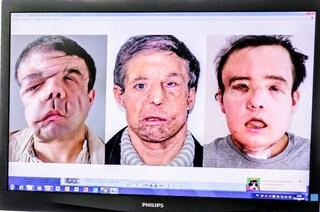 Jérôme, l'uomo con 3 facce, mostra i risultati del secondo trapianto di viso: record mondiale