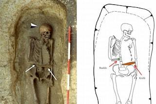 Questo medievale italiano aveva un'arma al posto della mano