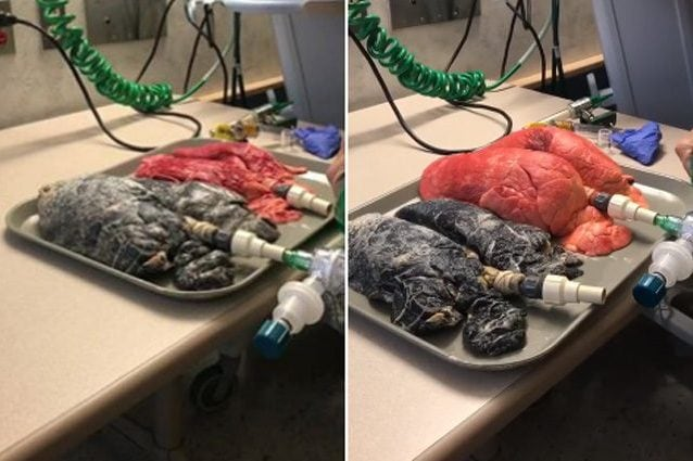 Il confronto tra un polmone sano e uno di un fumatore colpito dal cancro Credit: Amanda Eller