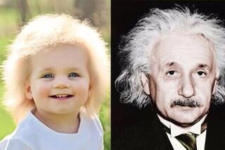 Taylor, la bimba che sembra Einstein a causa di una mutazione genetica molto rara