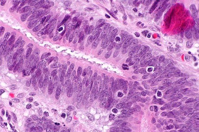 Terapia rivoluzionaria con cellule immunitarie TIL uccide il cancro al seno: cosa sono